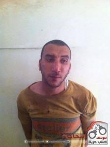 صورة الطالب بعد تعرضه للتعذيب